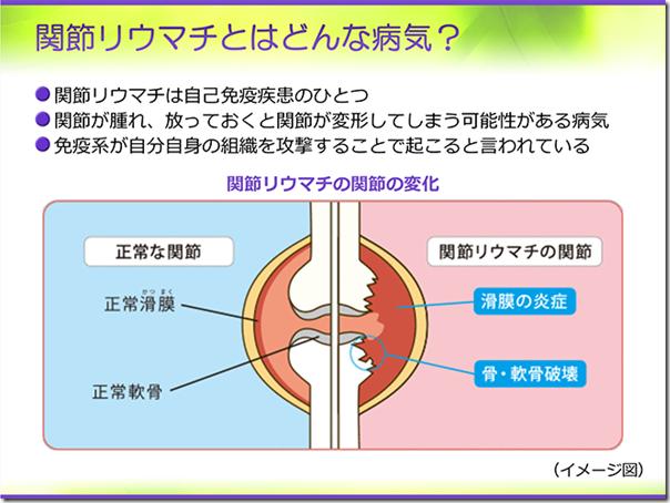 4-関節リウマチ01_688号